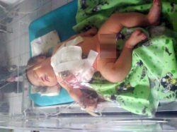 Bayi lahir tanpa dubur masih dalam perawatan (foto repro okezon)